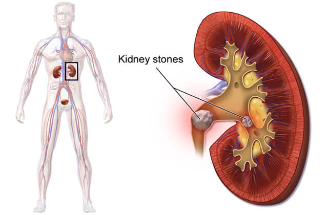 All About Kidney Stones