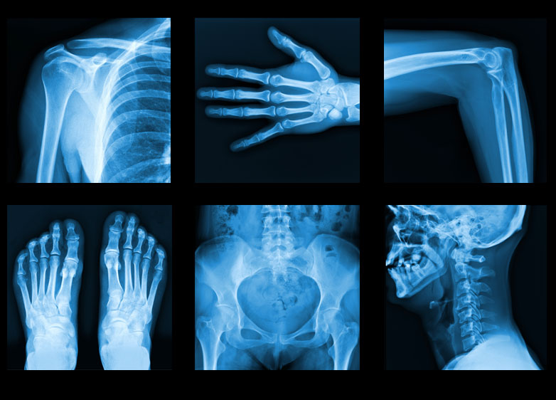 N Ray Radiography What is an x-ray | Dr....