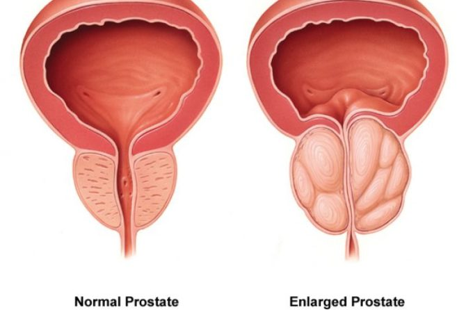 How Dangerous Is Having an Enlarged Prostate?